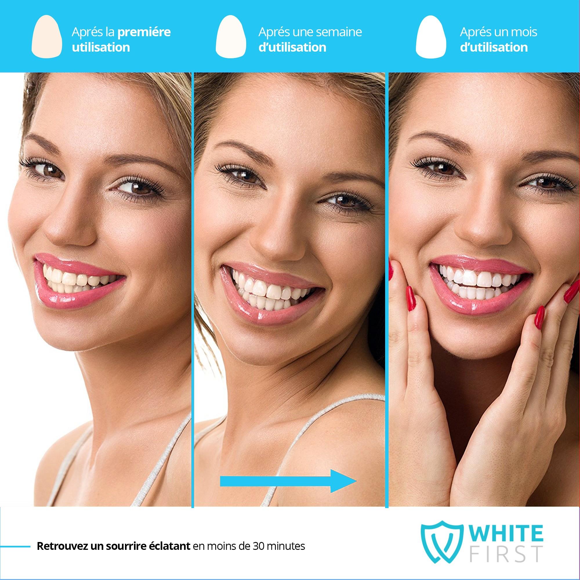 De Détails Accélératrice Kit Dentaire First Dents Blanches White Sur Blanchiment ® Lampe ywmN80nOv