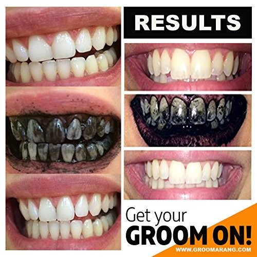charbon actif blanchiment dents